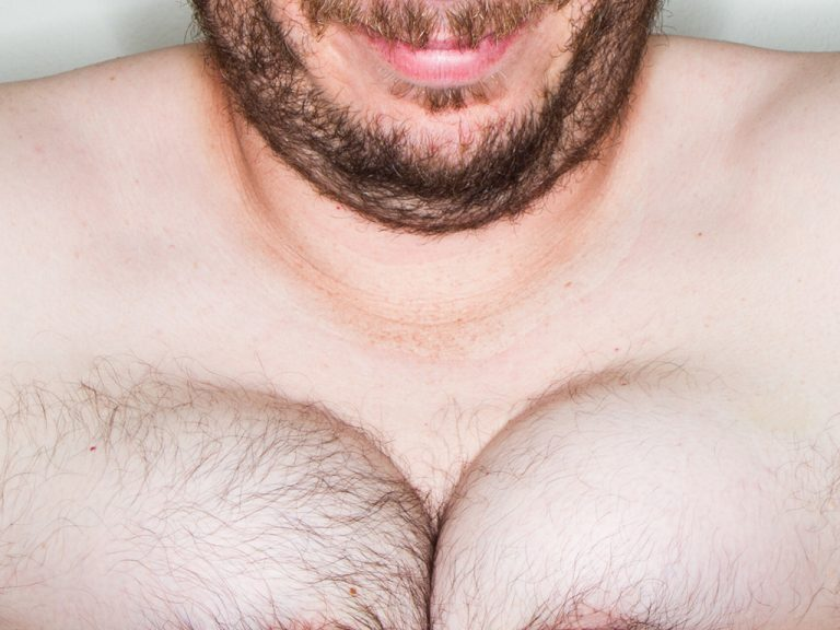 огромные сиськи у мужика фото